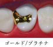 ゴールド/プラチナ