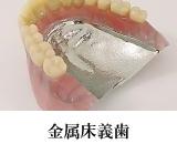 金属床義歯