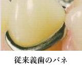従来義歯のバネ