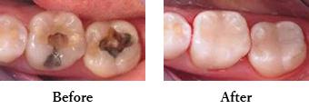 虫歯(C3)の治療
