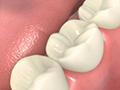 人工歯の取り付け