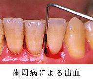 歯周病による出血