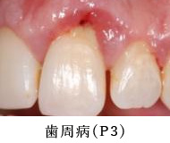 歯周病(P3)